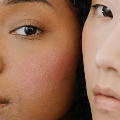 acne-maroochydore-naturopath